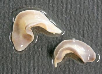 Fascioliasis heaptica